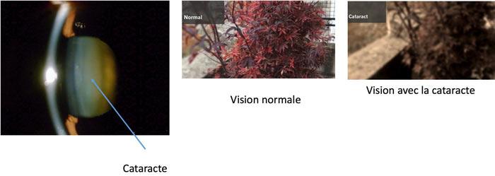 cataracte-seine-et-marne-ophtalmologie